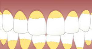 Jak vyzrát na zubní kámen